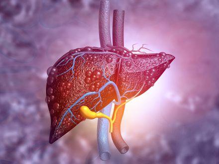 Karaciğer Yağlanması Diyeti